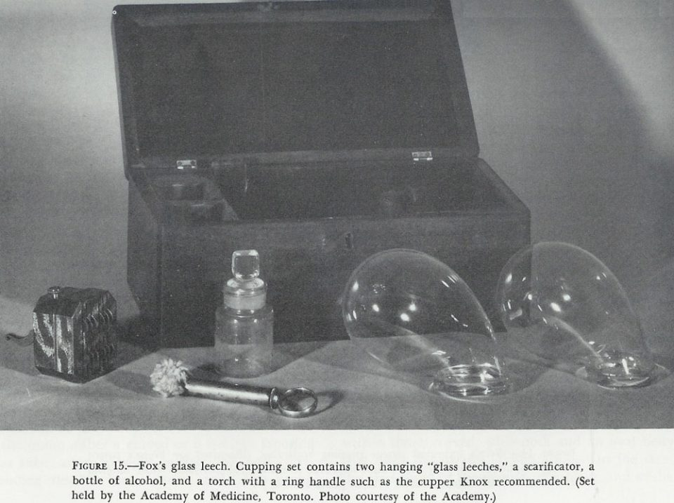 Fox's Glass Leech Cupping Set 1850
