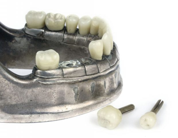 vecabe-dental-model-107